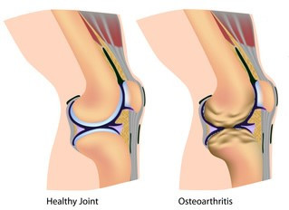 Physical Therapy for Knee Osteoarthritis