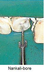 Nankali-post system-bur .bmp