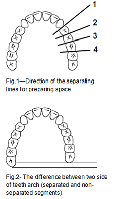 A solution in orthodontia.png