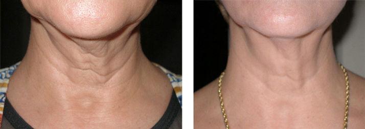 Face Tightening Treatments