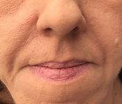 Lip enhancement London_after