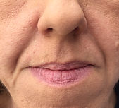 Lip enhancement London