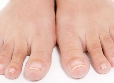 Πώς να μην μπαίνουν τα νύχια των ποδιών, στο δέρμα ;