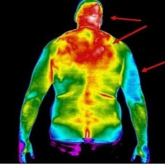 Thermography Results