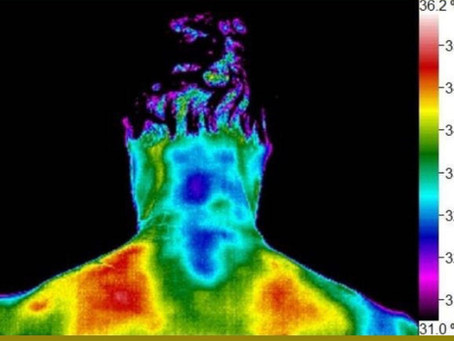A Chiropractor in Den Haag uses thermography to help chronic pain sufferers