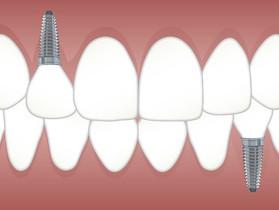 Com vergonha de sorrir devido à ausência de dentes? Saiba como implantes podem mudar sua vida