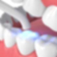 Curación Dental Buccalmedic
