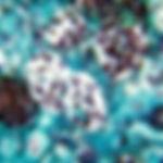 ヒストプラズマ.jpg