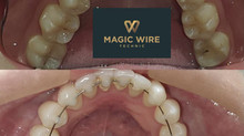 Técnica Magic Wire