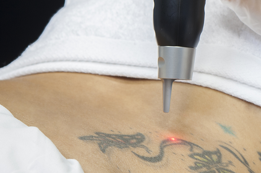 Laser-para-quitar-tatuajes