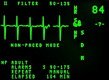 electrocardiogram-16948_1920.jpg