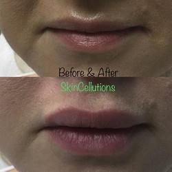 Lip enhancement using Teosyal, Kiss