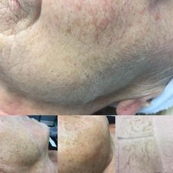 Dermaplaning Skin Rejuvenation before &