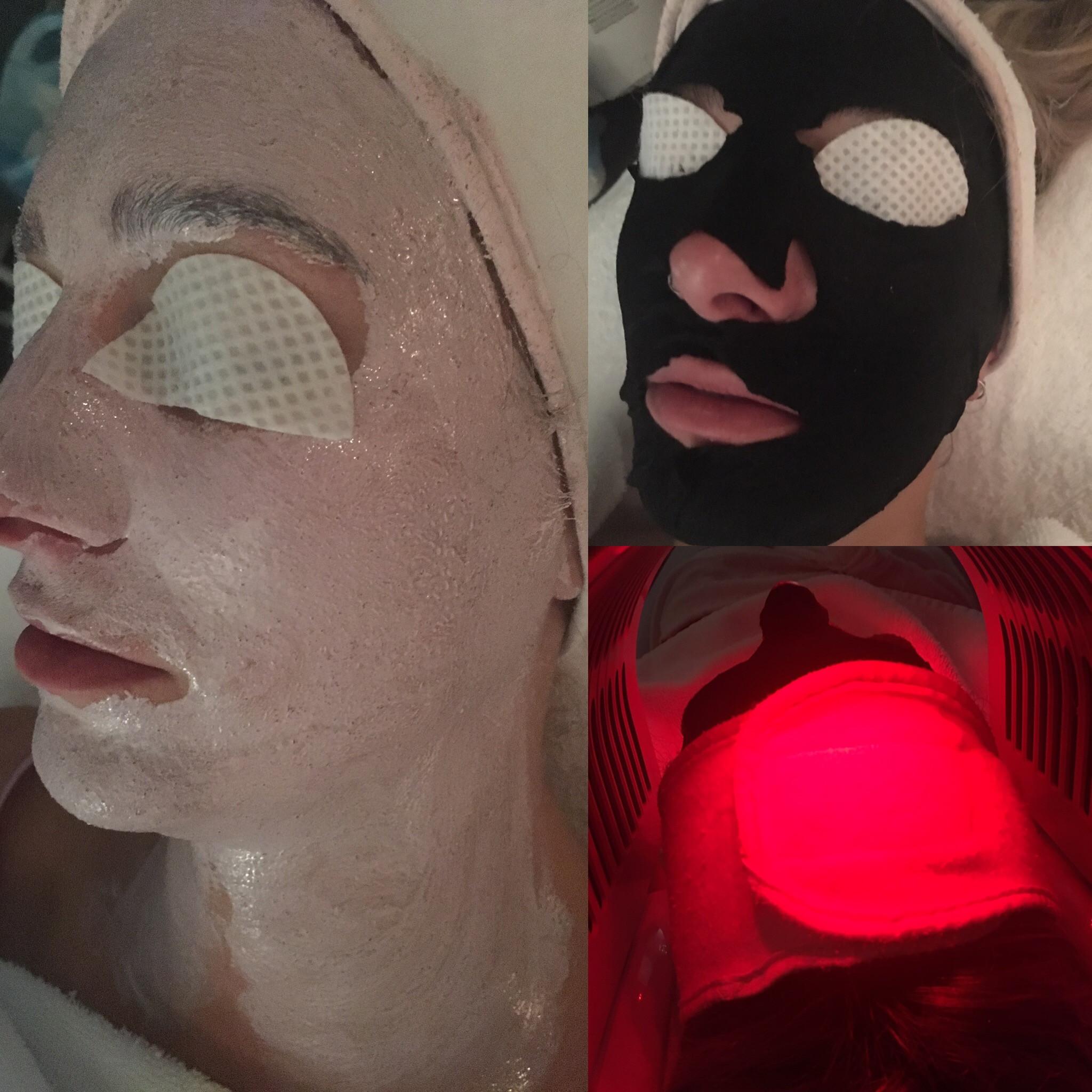 FIR (Far-Infrared Facials)