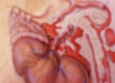 adrenalhemorrhagemi01apan6c_1381684-860x