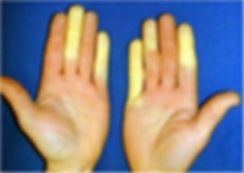 300px-Raynaud's.png
