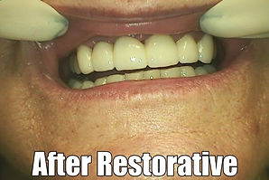 After treatment with a dental bridge.