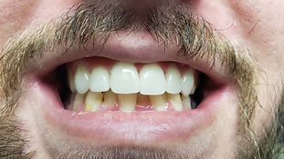 After treatment with dental crowns of bad front teeth