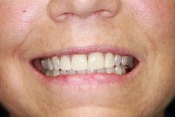 Veneers on 2 front teeth.