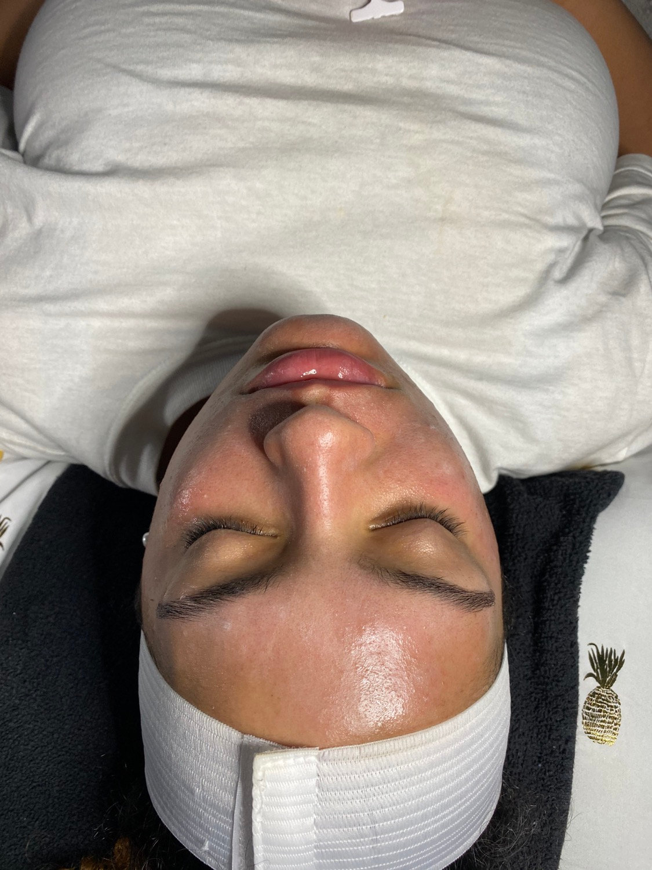 Post Peel Facial