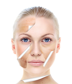 kisspng-skin-care-beauty-chemical-peel-f