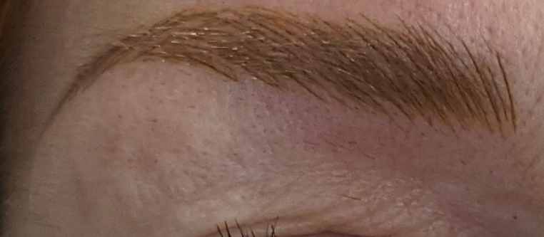 Sue's Eyebrow Transformation