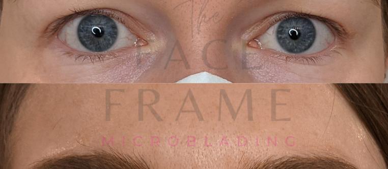 Lauren's Eyebrow Transformation
