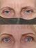 Irena's Eyebrow Transformation