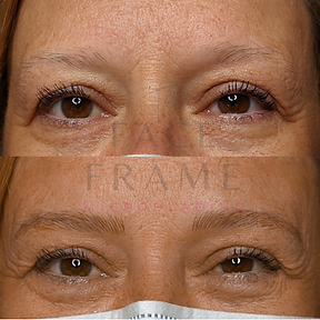 Burcu's Eyebrow Transformation