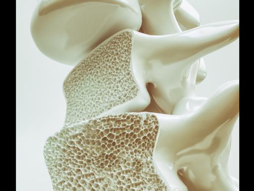 Ossa fragili e ossa forti: Perché è importante il movimento in caso di osteoporosi?