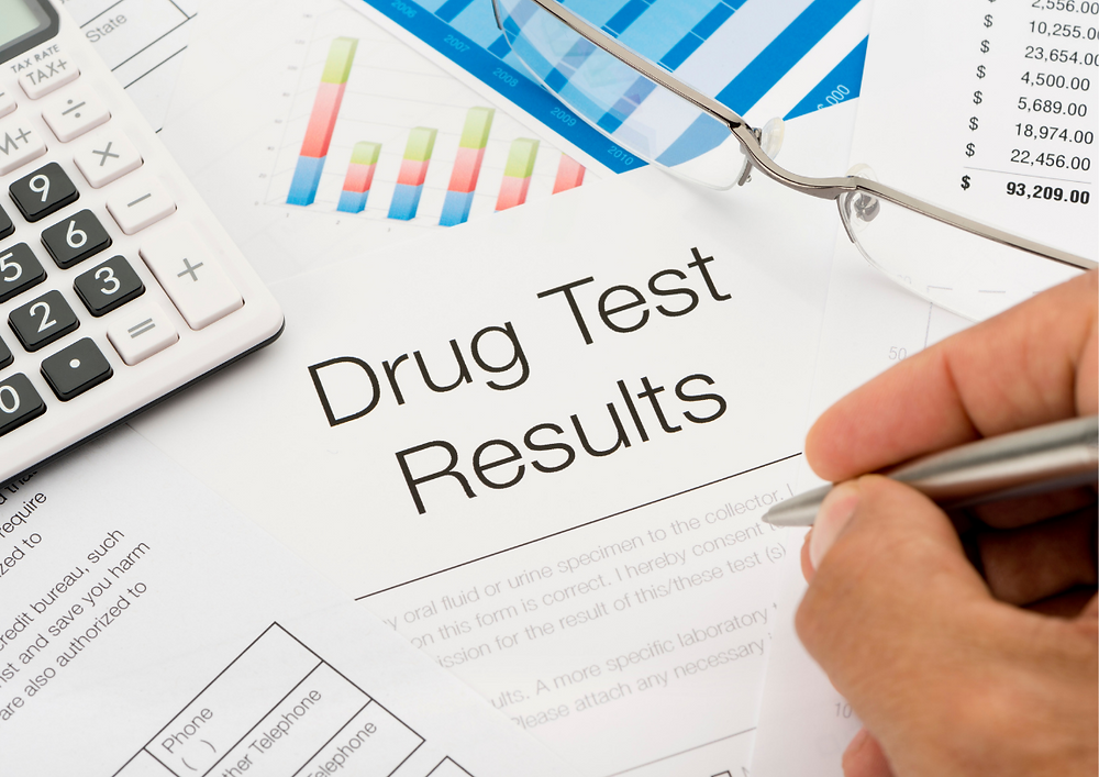 drug and alcohol test results and state laws