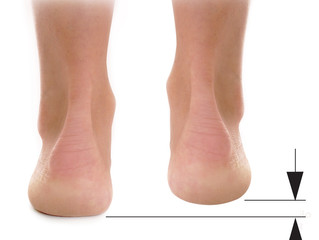 Draag jij steunzolen omdat je ene been korter is dan de andere?