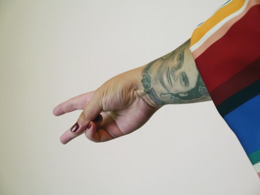 Psoriasis, Scars & Tattoos