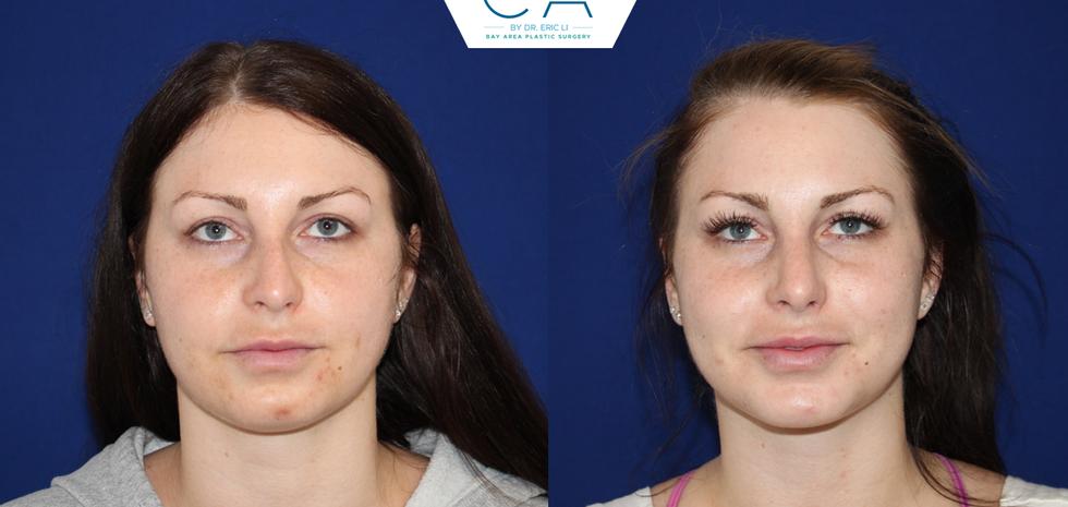 3D liposuction, liposuction neck and jawline, closed rhinoplasty