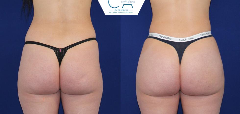 3D liposuction, buttock augmentation, buttock enlargement, buttock enhancement, fat transfer to buttocks, fat transfer to hips, fat grafting to buttocks, fat grafting to hips