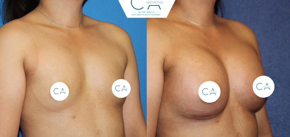 asian breast augmentation, breast augmentation, silicone implants