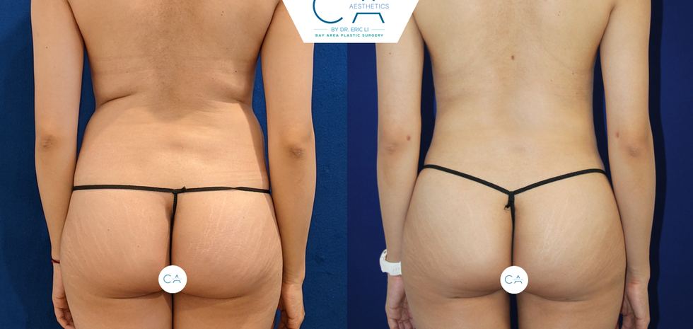 3D liposuction, liposuction abdomen and bilateral flanks, liposuction back, liposuction medial thighs, buttock augmentation, buttock and hip fat grafting, buttock and hip fat transfer