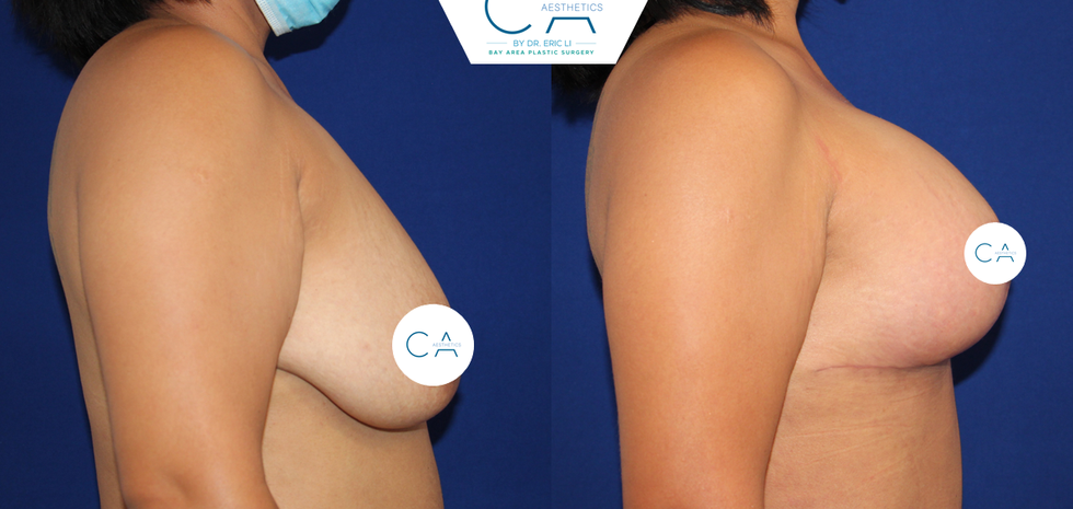 Mastopexy-Augmentation 3 Lateral.png
