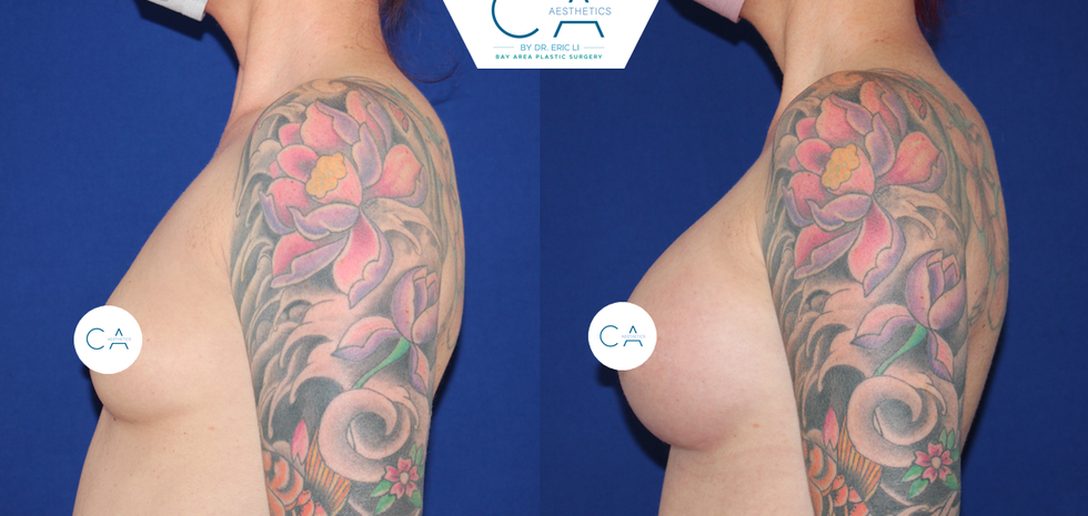 breast augmentation, breast enhancement, breast enlargment, breast implants, silicone implants
