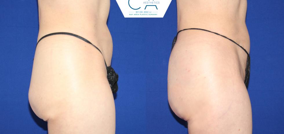 Buttock augmentation, buttock enlargement, buttock enhancement, Sculptra injections, Sculptra buttock augmentation, Sculptra buttock lift