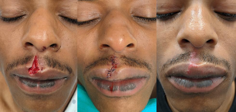 Lip laceration repair