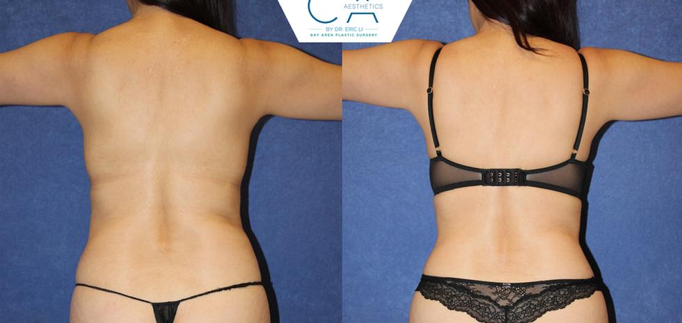 3D liposuction, liposuction abdomen and bilateral flanks, liposuction back