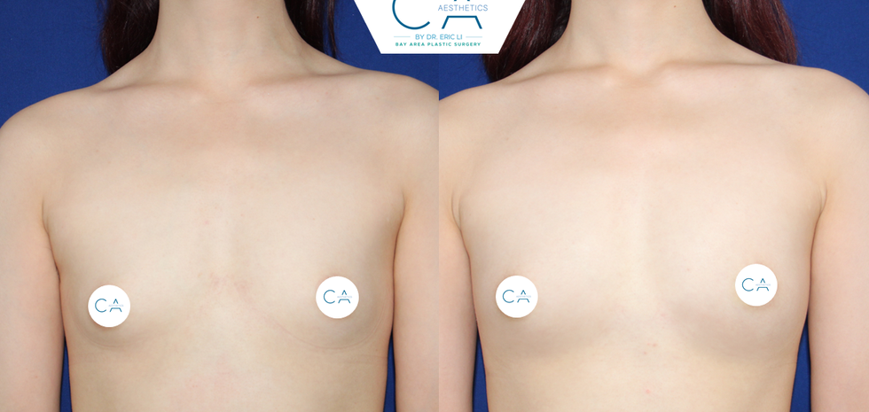 Breast Augmentation 16 AP.png