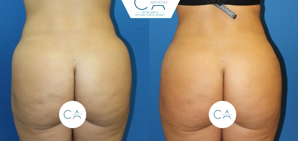 Liposuction lower back
