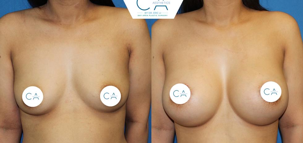 peri-areolar breast lift, breast augmentation