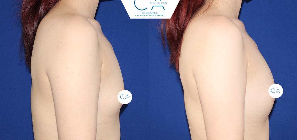 asian breast augmentation, breast fat transfer, breast fat grafting