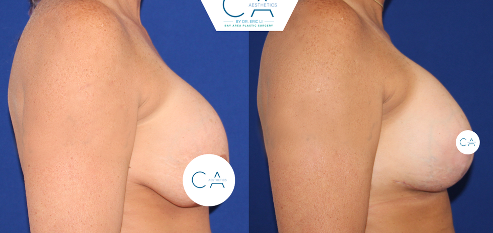 anchor breast lift, exchange implants, pocket adjustments, revision breast surgery