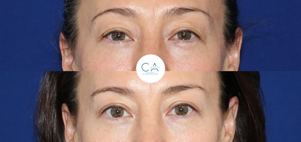 Upper eyelid blepharoplasty, upper eyelid surgery