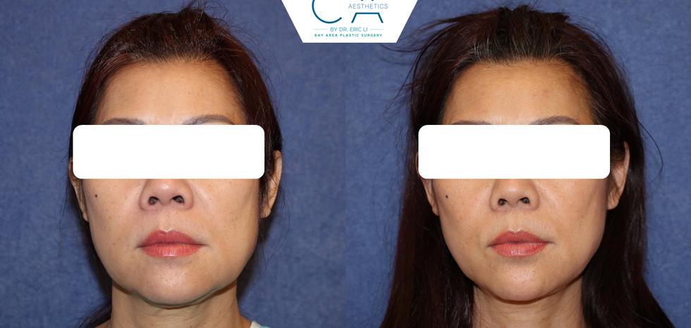 Chin liposuction, neck liposuction