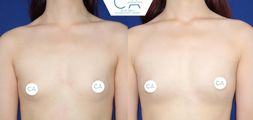 Breast Augmentation 6 AP.png